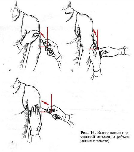 Как сделать внутримышечный укол в плечо