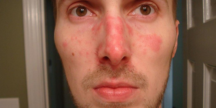 agyag után vörös foltokkal borított arc)
