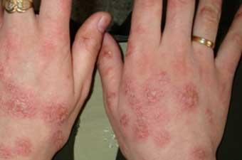 vörös foltok a karokon kéztől könyökig)